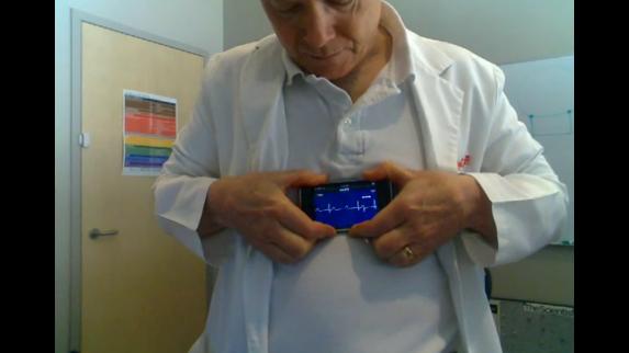 iCard ECG: L'accessorio che trasforma i nostri iPhone in veri e propri elettrocardiografi [Video]