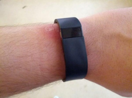 fitbit-force-wristband-irritation