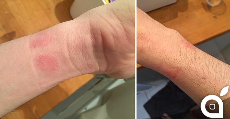 Si verificano i primi casi di allergia ai materiali dell'Apple Watch
