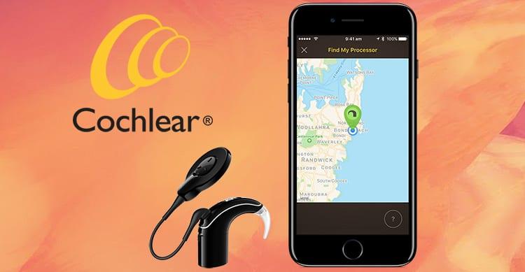 Apple e Cochlear realizzano il primo impianto acustico MFi