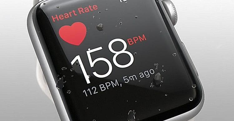 Apple collaborerà con Stanford e American Well per migliorare Apple Watch nel riconoscere aritmie