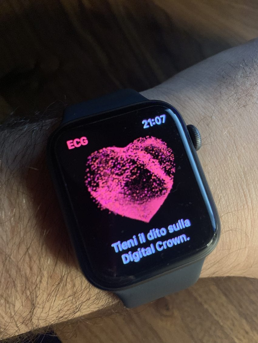ECG in italiano su Apple Watch