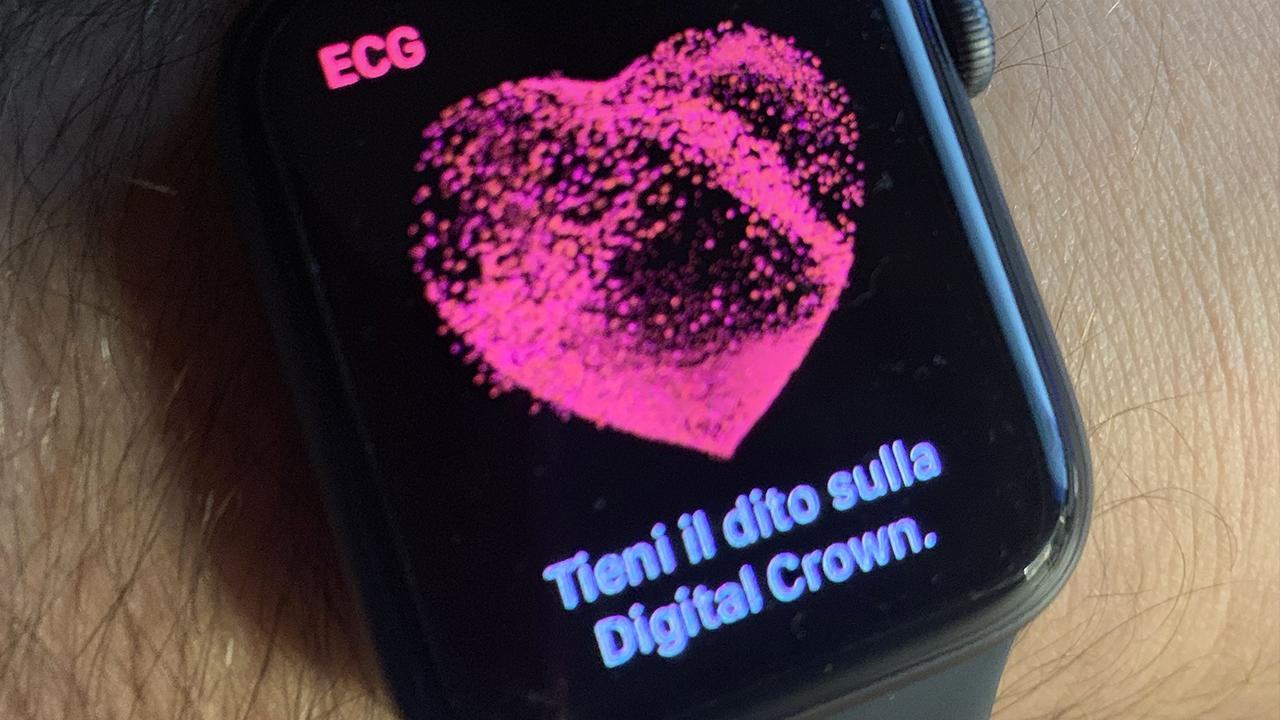 ecg apple watch italia